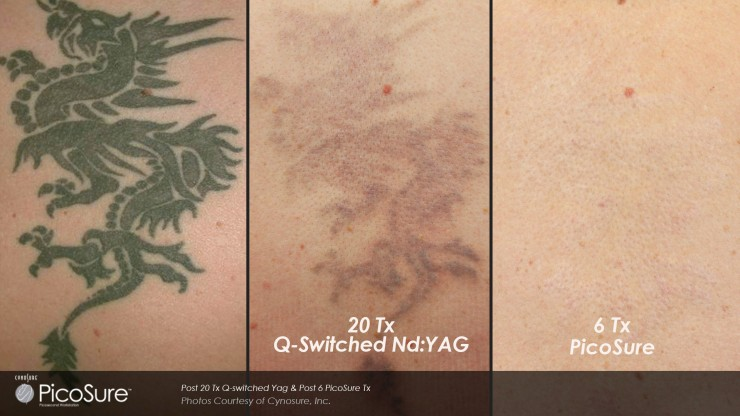 tattoo removal fromBC Laser and Skin Care