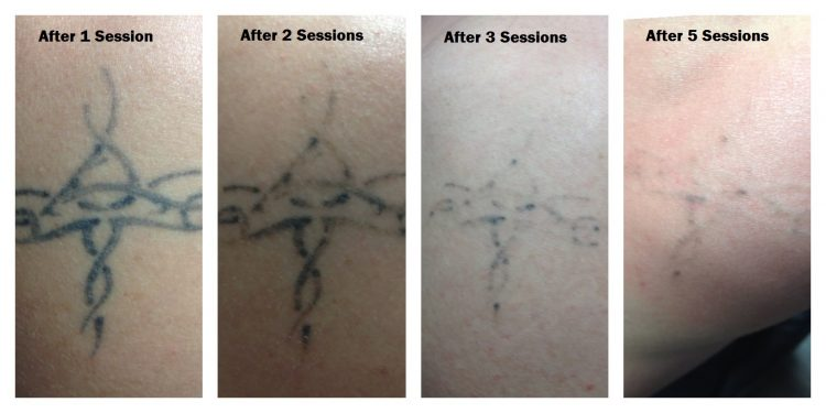 tattoo removal at Gastown Tattoo
